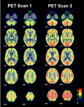 averaged fdg pet scan images in four subjects treated with ngf ...
