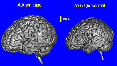 Why Autism Is Different In Brains Of >> Ucsd Researchers Find Brain Overgrowth During First Year Of Life In