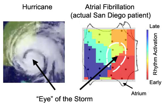 "<p>Left panel shows the eye of a hurricane. Right panel shows the striking similarity of the rotor or localized source of an arrhythmia in a patient with atrial fibrillation. Ablation targeted at these rotors or ""eyes of the storm"" successfully terminated and eliminated atrial fibrillation in the CONFRIM trial. Photo credit: UCSD/UCLA.</p>"