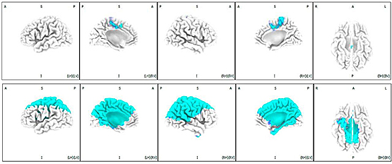 <p>In this schematic, reduced activation in discrete medial prefrontal brain regions is depicted (in blue) in schizophrenia patients, occurring 0.2 seconds after sound changes (top panel), cascading forward to widespread brain regions associated with the automatic activation of attentional networks 0.1 second later (bottom panel).</p>