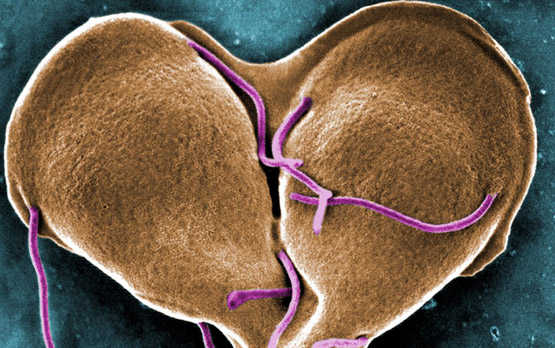<p>A false-color scanning electron micrograph of the water-borne intestinal parasite Giardia lamblia. Image courtesy of Centers for Disease Control and Prevention.</p>