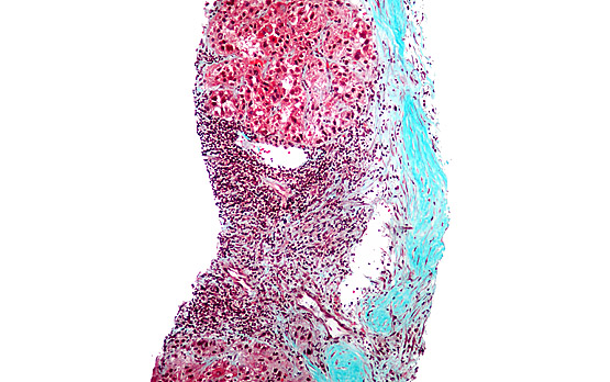 <p>Stained liver biopsy micrograph showing hepatocellular carcinoma cells with Mallory bodies (reds and blacks).</p>