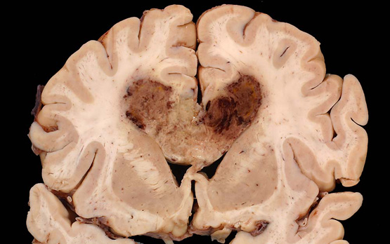 <p>Human brain specimen with glioblastoma multiforme.</p>