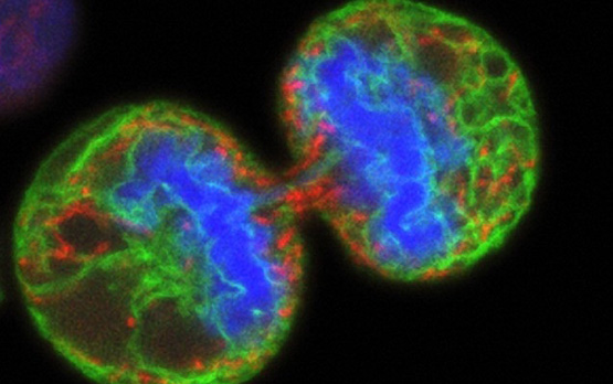 <p>A confocal micrograph of a human melanoma cell undergoing division or mitosis. The resulting daughter cells are temporarily linked by a bridge of remaining cytoplasm. Green staining labels the endoplasmic reticulum; red colors the mitochondria. Blue indicates the chromosomes. Courtesy of Wellcome Images.</p>
