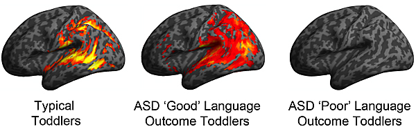 "Image: mage depicts patterns of brain activation in typically developing, ASD ""Good"" and ASD ""Poor"" language ability toddlers in response to speech sounds during their earliest brain scan (ages 12-29 months)."