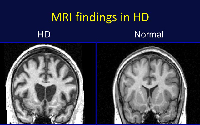 huntingtons disease an overview essay Health, medicine - overview of huntington's disease title length color rating : huntington's disease - an overview essay - huntington's disease - an overview.
