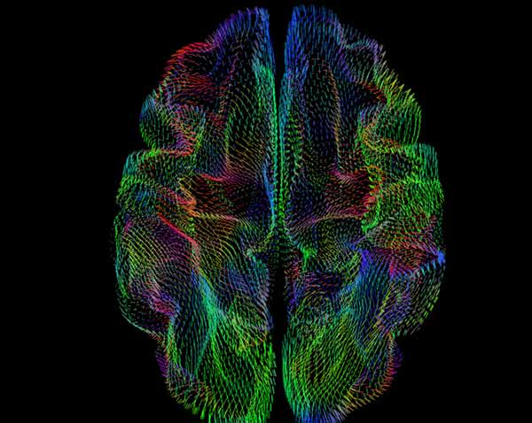 Image: shape of the cerebral cortex correlates with genetic ancestry