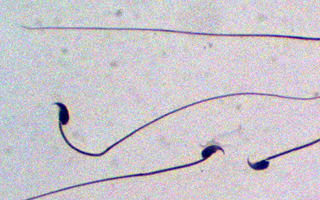 Image: In experimental mice, researchers found that sperm production is dramatically reduced when the NMD repressor, UPF3A, is prevented from being expressed in the cells that give rise to sperm.
