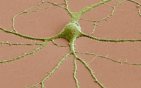 Image: False-colored scanning electron micrograph of a human neuron