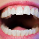 Migraine Sufferers Have More Nitrate-Reducing Microbes in their Mouths
