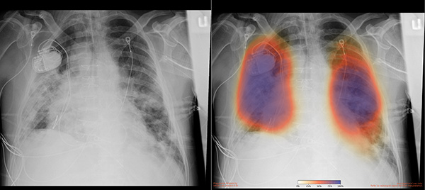 Chest X-ray for patient with COVID-19