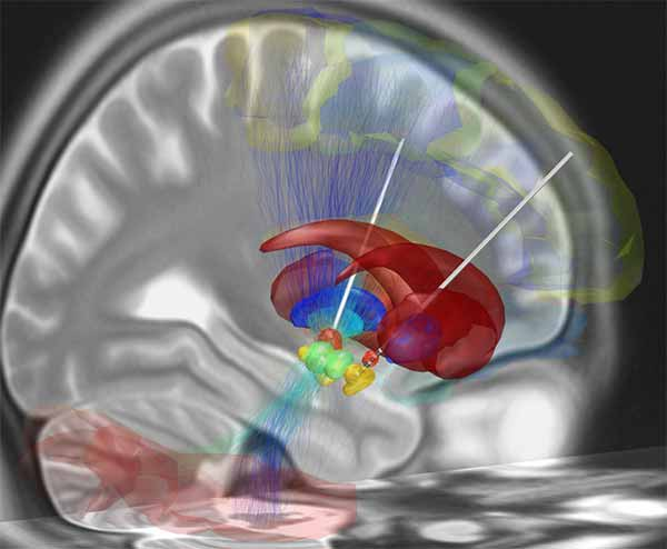 Image: A reconstruction of deep brain stimulation electrodes that have been surgically placed into the most common target structure for treatment of Parkinson's disease