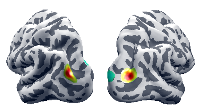 A brain scan showing high-density EEG data.