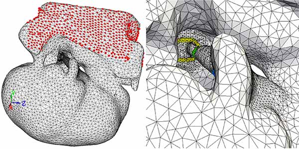 Photo: (A) Finite element mesh 4, and (B) Close-up of the ossicular chain