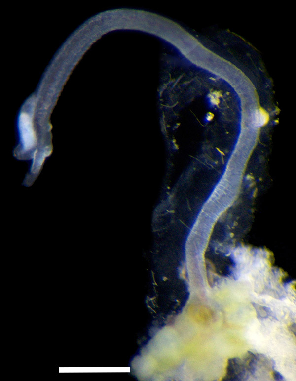 photo: male Osedax priapus (bone worm)