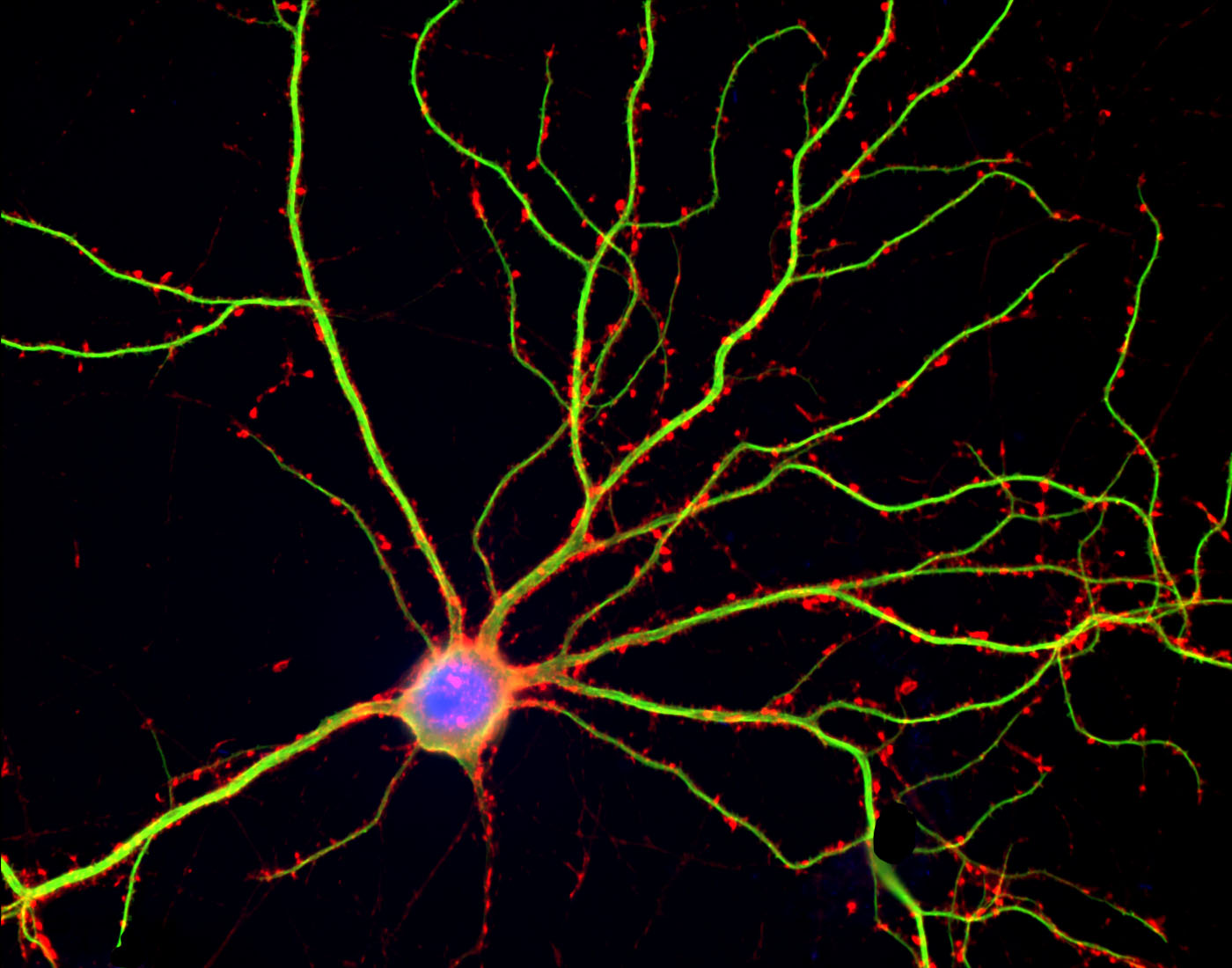 Brain Cells Dendrites Brain Cell Connections Are
