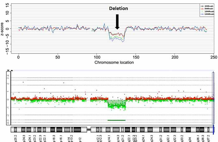 Image: Detection of chromosomal deletion by NIPT