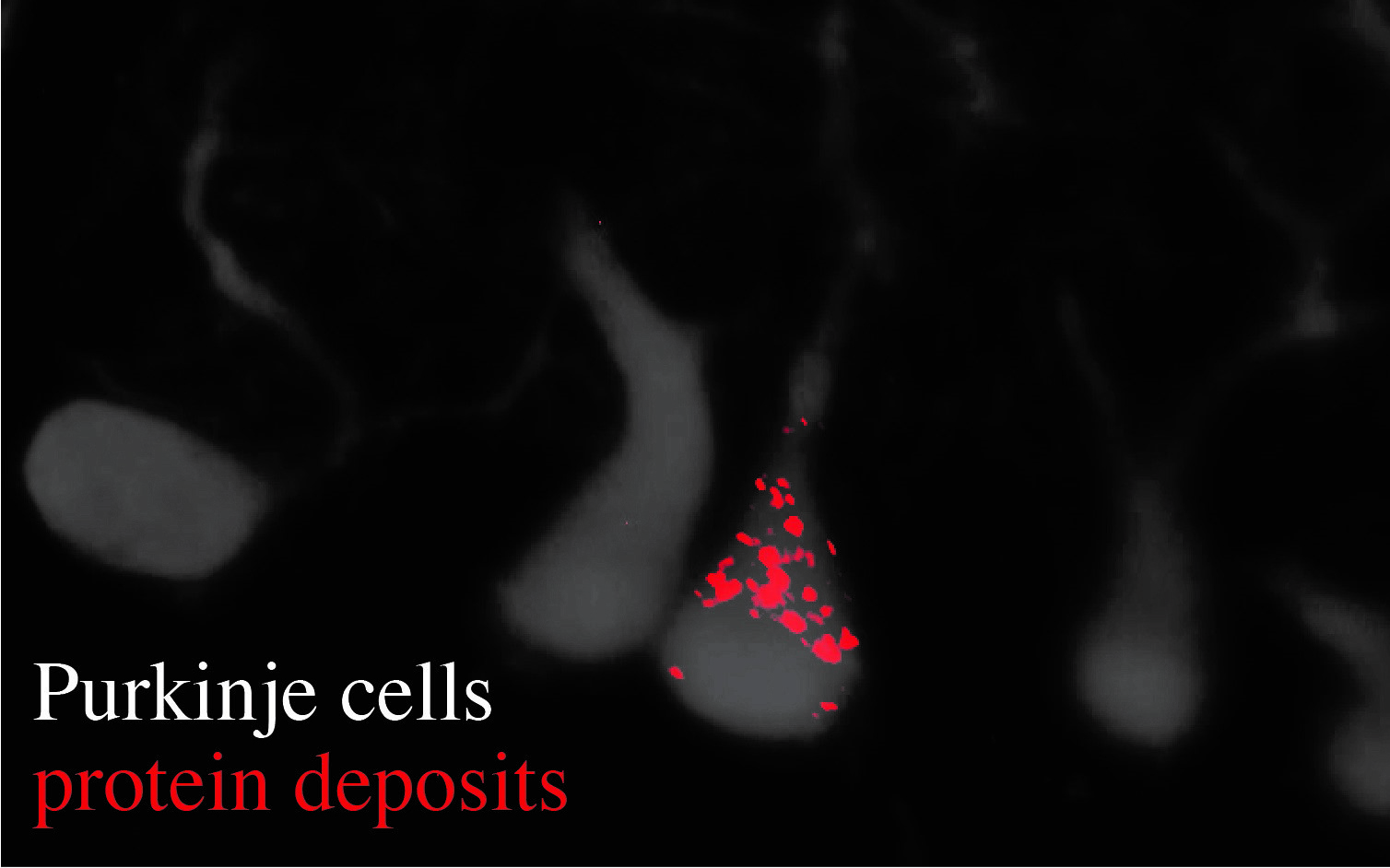 Microscopic image shows Purkinje cells and an accumulation of protein deposits.