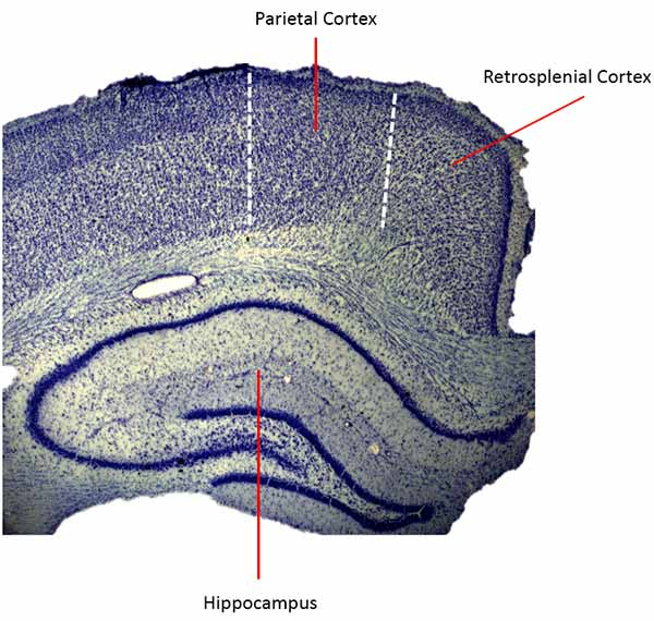 Image: The retrosplenial cortex, seen here in the rat brain, appears to be vital in helping an animal successfully navigate the world.