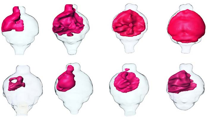 Image: MRI renderings of mouse brain tumors.