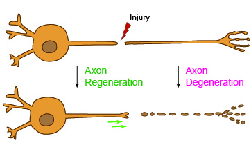 A cartoon depiction of axon injury and regeneration.