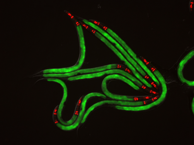 <p>Green fluorescent proteins signify the expression of immune genes in the roundworm's intestine. <em>Credit:</em> Troemel Lab, UC San Diego</p>