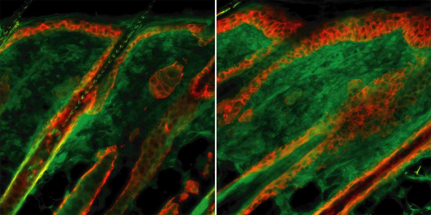 Image:Images of skin sections from wild-type mice