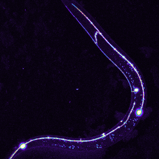 <p>Long fibers emitting from neurons called axons, seen as thin lines in the mechanosensory neurons of the laboratory roundworm <em>C. elegans,</em> were the focus of the study. Credit:&nbsp; Zhiping Wang, UC San Diego</p>