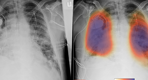 bfore and after imaging of lungs